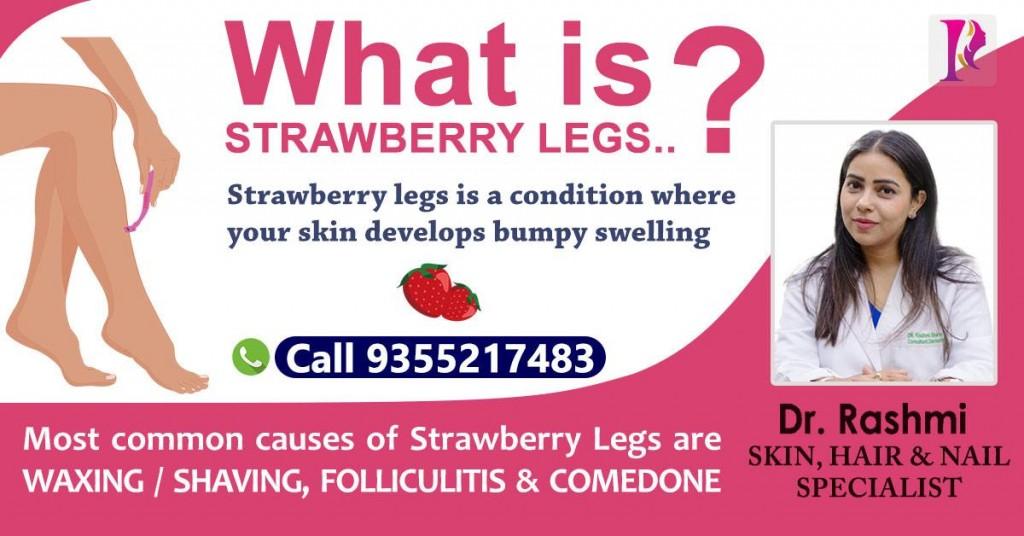 Strawberry Legs treatment by Dr Rashmi Sharma, Skin Hair Nail Specialist at Vasant Kunj, New Delhi