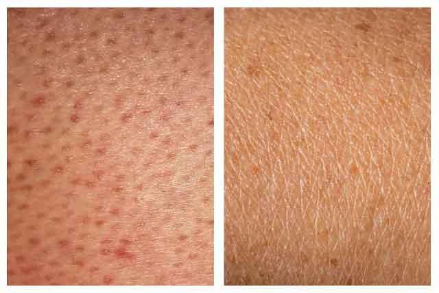 strawberrry-legs-skin-care-